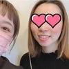 浜松市小顔 お客様の声「顔の左右のゆがみはだんだんと気にならなくなりました」の画像