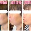 VOSサロンケア 3回目後のお肌の変化の画像