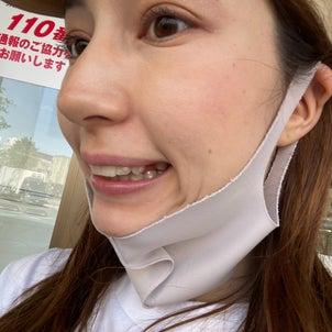 2年ぶりの抜歯...さよなら我が第一小臼歯の画像