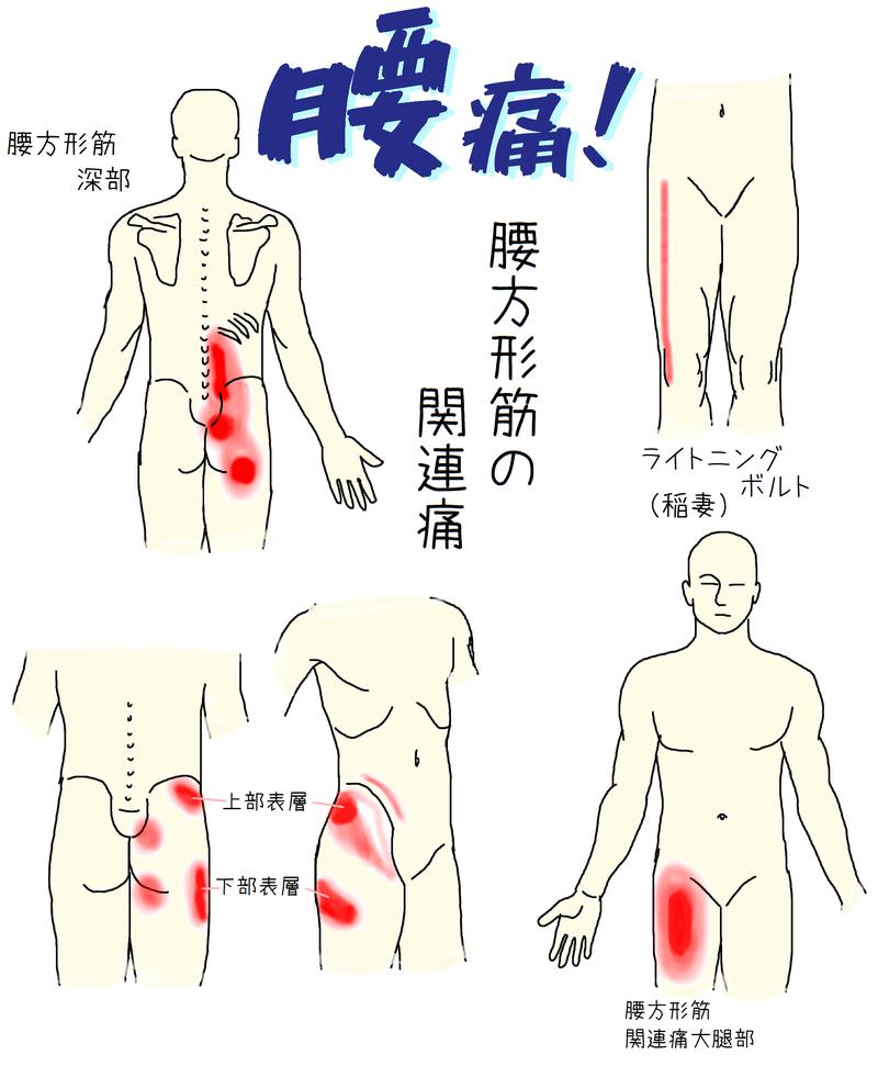 腰方形筋関連痛トリガーポイント