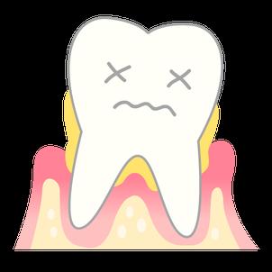 歯ぐきの病気にも口腔筋機能療法(MFT)は効果的!?の画像