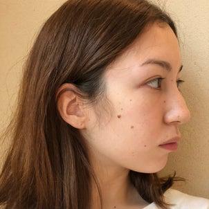 ホクロレーザー治療から7ヶ月、まだ名残りのある切除跡の画像