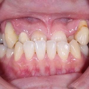 35歳 女性 主訴は下顎前突と八重歯 下顎にバイトプレート使用して非抜歯での治療が終了しました。の画像