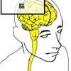 線維筋痛症 1の画像