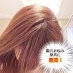 「髪はどこまで増えるのか伸びるのか」衝撃の検証レポ【フィトペシア スカルプテラピー】