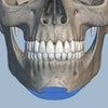 若い方の顎の注入例の画像