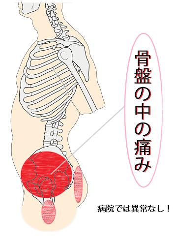 骨盤内の痛み
