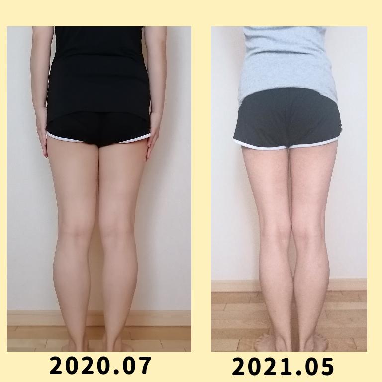 脚が太いのは脂肪だけが原因じゃない