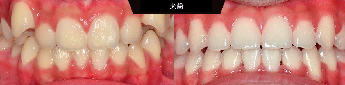 歯列矯正 歯並び 韓国整形 韓国美容
