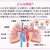 肺高血圧症とは?の画像