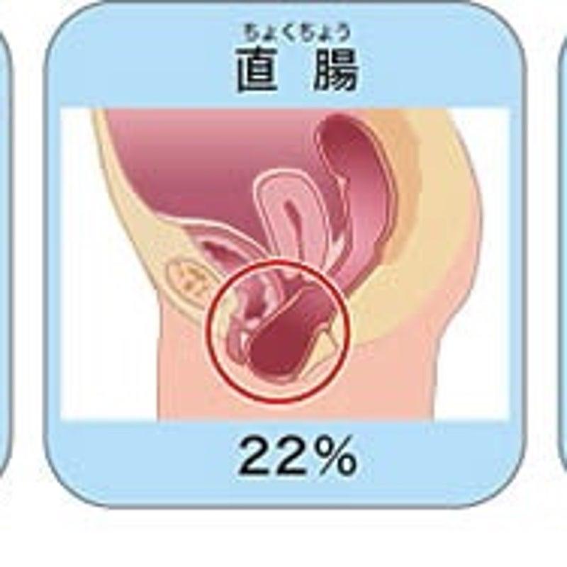 子宮 脱 手術 ブログ