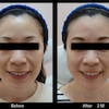 定番中の定番の注入例~続き・表情筋の調律効果~の画像