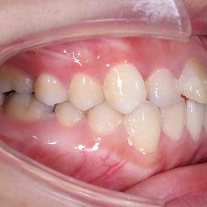 22歳 女性 上顎前突が主訴 小臼歯4本抜歯による治療が終了しました。の画像