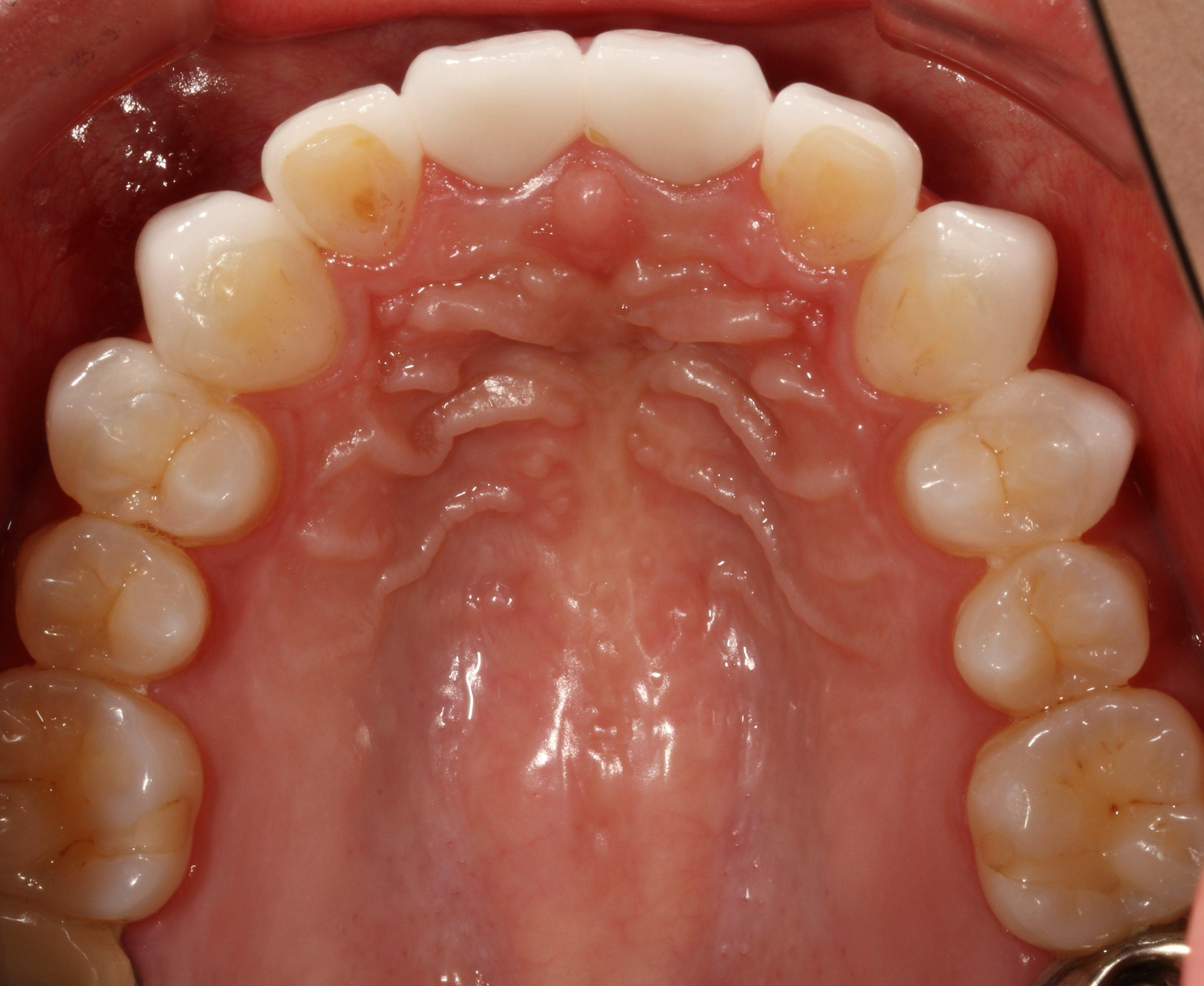 噂のラミネートベニヤは、あまり歯を削らない、症例を選べばいい処置。