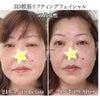 50代女性/3D顔筋フェイシャルの当日ビフォーアフターの画像