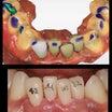 No.83 前歯を元にを戻してから矯正治療お願いします