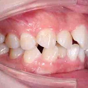 24歳 女性 上顎前突が主訴 小臼歯4本抜歯してブラケットの治療が終了しました。の画像