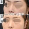 【鼻整形症例数 SBC内全国No.1!】鼻尖形成3D法+鼻尖部軟骨移植+鼻中隔延長+PDSシートの画像