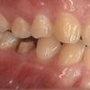 歯冠長ない歯に保険のCAD/CAM冠はだめでしょの画像