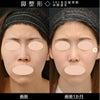【鼻整形症例数 SBC内全国No.1!】鼻尖形成3D法+鼻尖部軟骨移植+鼻中隔延長+鼻翼縮小の画像