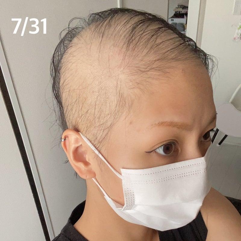 【実録】コロナワクチンで脱毛症の1ヵ月の記録【写真あり】