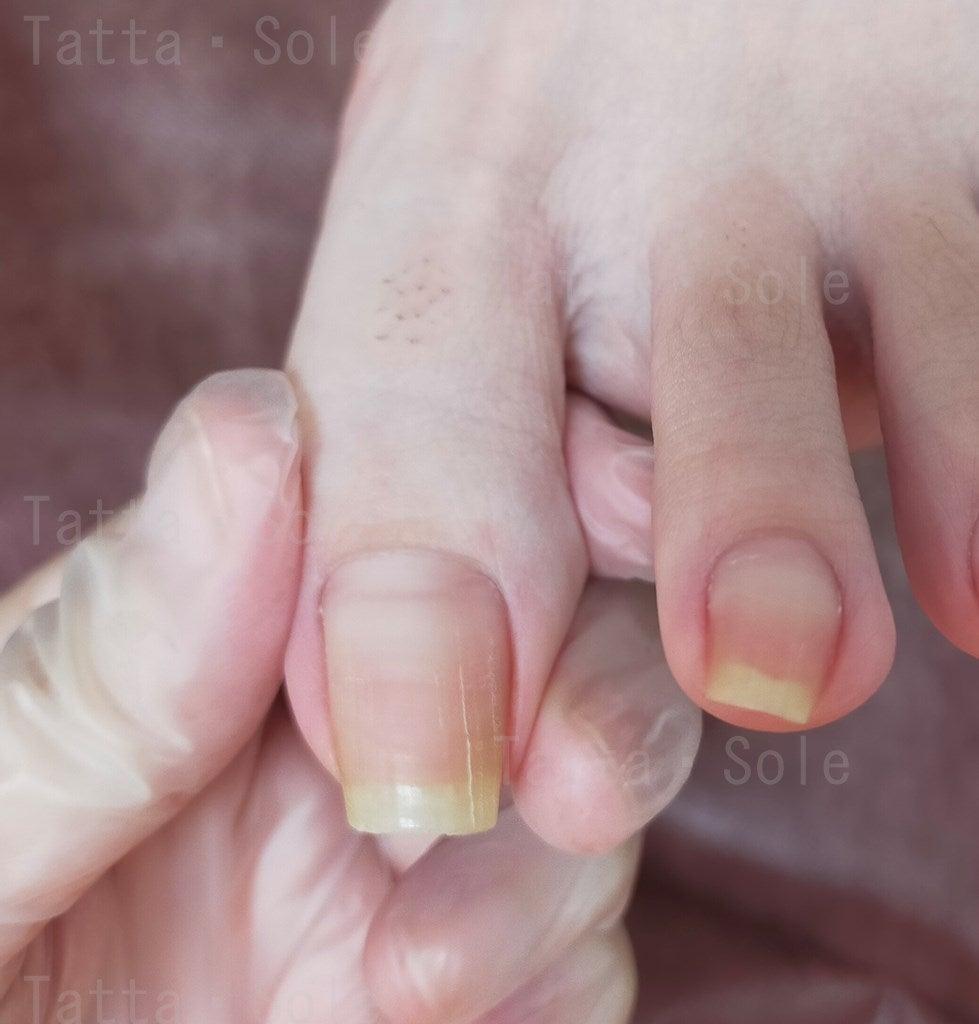 伸びすぎた爪