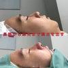 【鼻整形症例数 SBC内全国No.1!】ソフトプロテーゼ+鼻尖形成3D法+鼻尖部軟骨移植の画像