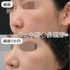 【鼻整形症例数 SBC内全国No.1!】鼻尖形成3D法+鼻尖部軟骨移植+PDSシート(軟骨強化)の画像