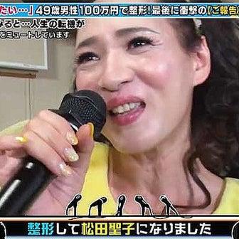 全身整形で憧れの松田聖子になった49歳男性