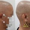 悪過ぎないけど気になってしまう例の修正。(Fixing a bad hairtattoo)の画像