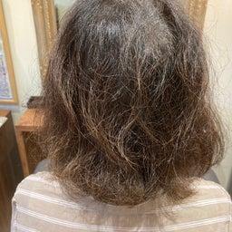 画像 美髪育毛4 の記事より 1つ目