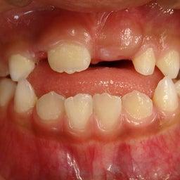 画像 飲み込みの癖があると歯並びに影響します( ゚Д゚) の記事より 1つ目