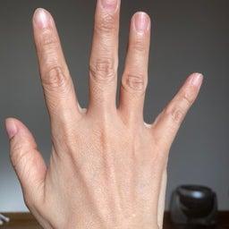 画像 アトピーの美容師の手です〜 の記事より