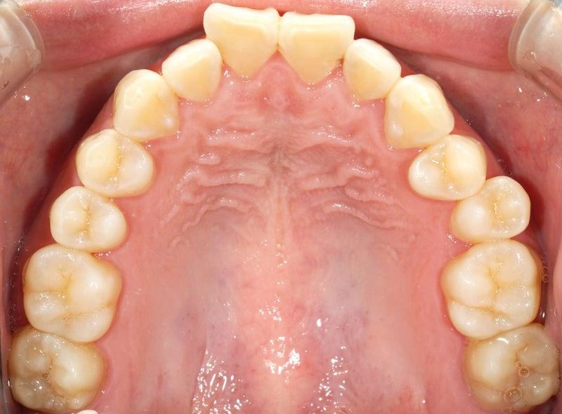 裏側矯正、舌側矯正の歯並び前後、上顎編。ワイズデンタルキュアのブログ