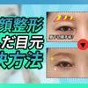 眉下切開or上瞼手術⁉瞼の弛みを綺麗に改善✨の画像