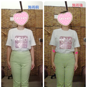 before/afterの画像