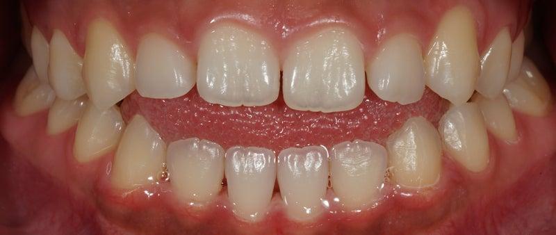 歯列矯正終了の方から、うれしいDMをいただきました。