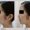 若い方の額と顎の注入&ブログ読者様限定のシークレットキャンペーンの画像