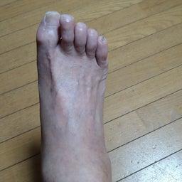画像 浮腫んだ足 の記事より