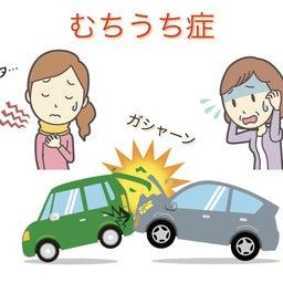 画像 交通事故(むち打ち)の治療 の記事より 2つ目