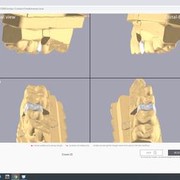 画像 AIが行う3Shape Automateの体験報告(松浦真也) の記事より 14つ目