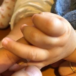 画像 憧れの赤ちゃん肌。 の記事より