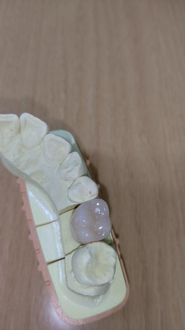 ジルコニア冠という選択肢⑩~抜歯からの解放~