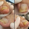 巻き爪専門センターのブログ