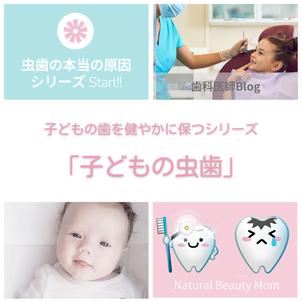 子どもの虫歯の画像