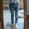 【レアート整形外科/脂肪吸引】~理想の脚を叶える太ももの脂肪吸引 レビュー~の画像