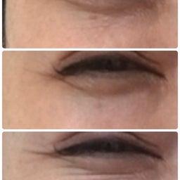 画像 頬のたるみの目の下のシワの関係 の記事より 1つ目