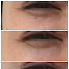 頬のたるみの目の下のシワの関係の画像
