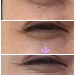 画像 頬のたるみの目の下のシワの関係 の記事より 2つ目