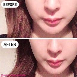 画像 3ケ月恒例!湘南美容外科でサーマタイトニングを受けてきました。 の記事より 4つ目